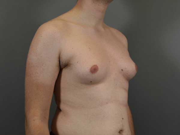 Bilateral Male Breast Reduction for Gynecomastia Procedure performed by board certified plastic surgeon, Dr. Jeffrey Ptak.