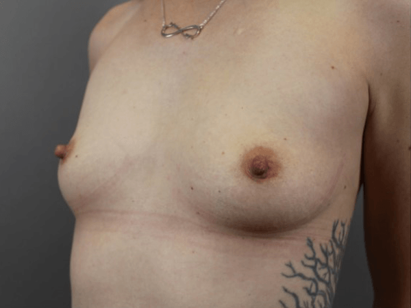 Procedure performed by board certified plastic surgeon, Dr. Jeffrey Ptak. Bilateral Subpectoral Breast Augmentation 325cc Moderate Plus Sientra Cohesive Gel Silicone Implants.