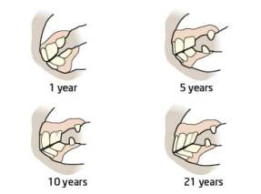 horse_teeth