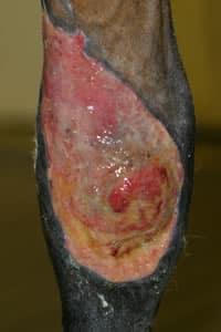 Wound.knee