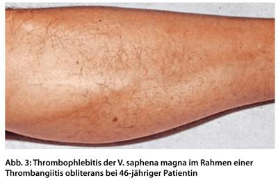 thrombophlebitis besser nicht