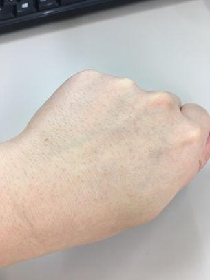 肌全体が白くなっている