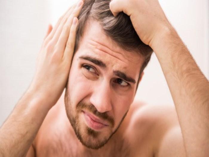 Rambut rontok yang terjadi secara berlebihan bagi seorang pria