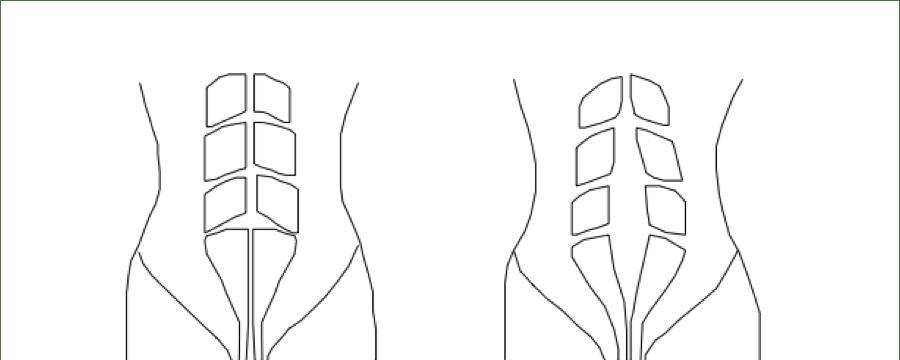 diastasis