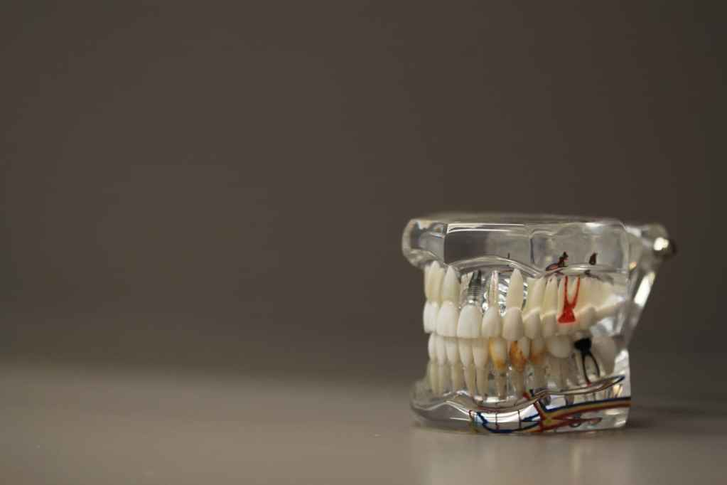 Root Cause - The Dangers of a Root Canal Your Dentist May Not Be Telling You - Dominick Hussey