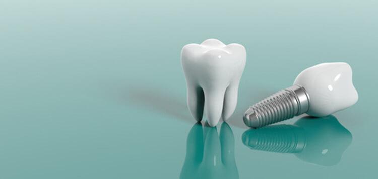 Dental Implants Alliston  Replacing lost teeth