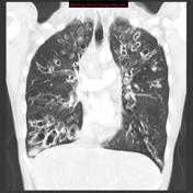 Cystic changes in the lungs due to bronchiectasis.