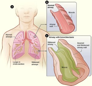Figure C (bottom right) shows bronchiectasis with mucus inside the breathing tube and thickening of the wall.