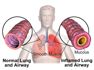 Smooth muscle wraps around the outside of the breathing tubes. This address Can Albuterol Cause Weight loss