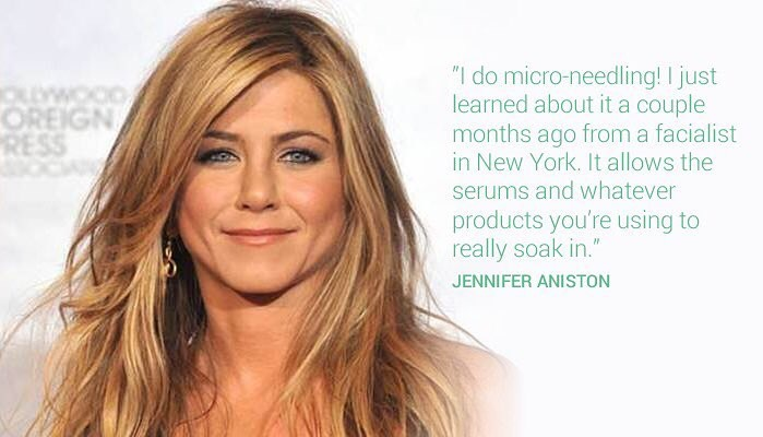 Beauty Could Micro Needling Be The Key To Looking Younger