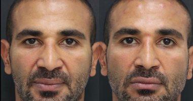رأي زوجة أحمد سعد به بعد عملية التجميل للذقن 2020