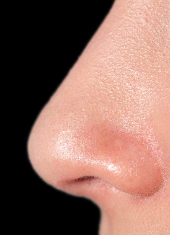 Che cosa significa sognare un naso  DonnaD