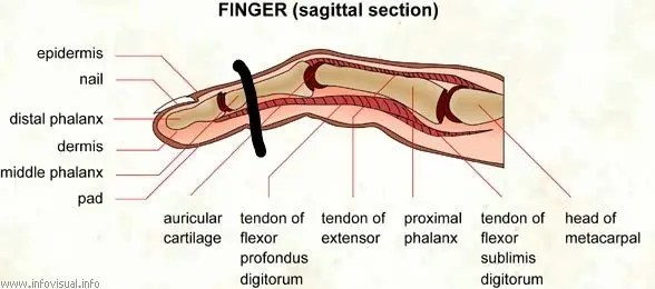 Picture showing amputation of finger after a factory accident at work.