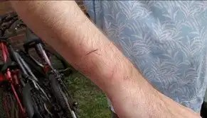 Photo of forearm injuries caused by police during arrest.
