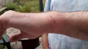 Photo of cuts to arm following arrest.