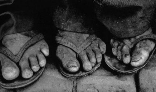 pies pobres