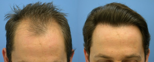 Hair Transplant- It's Types, Disadvantages And Approximate Fee Structure