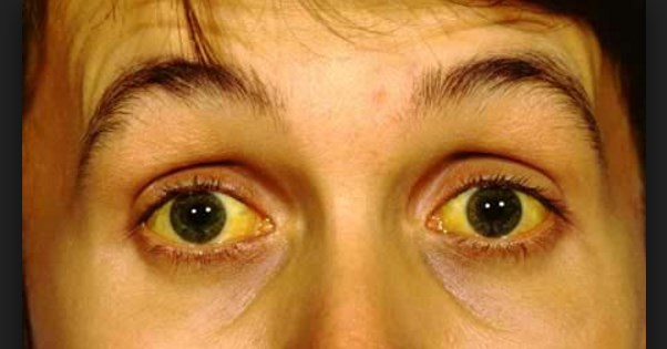 What is Jaundice? it's Symptoms and Prevention
