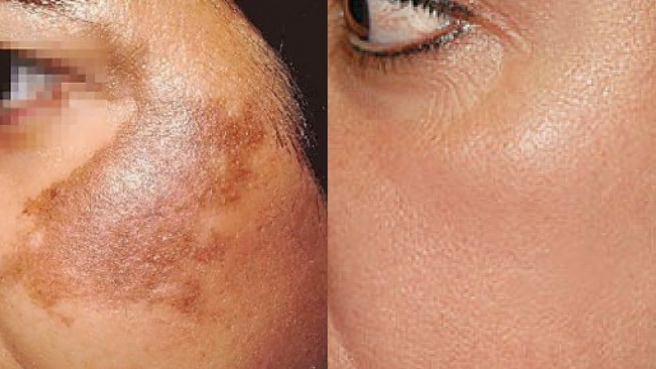 pigmentation-removal-in-dehradun-procedure-cost-benefits