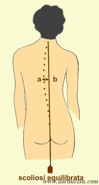 Scoliosidolori alla schiena e importanza del letto  Dormicisucom