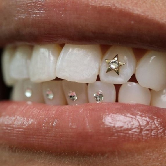 piercing-no-dente-7