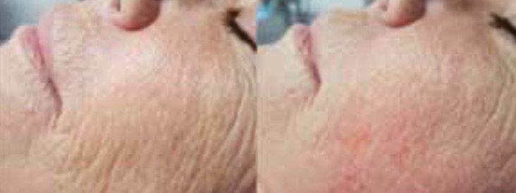 neofound fine wrinkles
