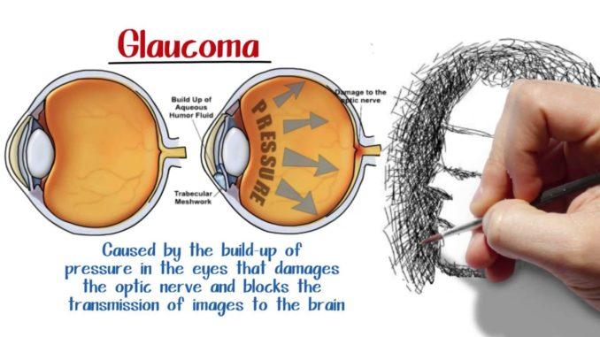 Glaucoma e rischio cecità nuova opportunità terapeutica da neuroprotezione