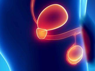 Terapia nucleare ha curato cancro prostata, trattamento rivoluzionario