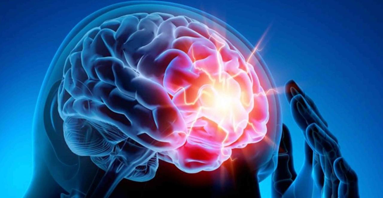 Epilessia, terapie aiutano a controllare crisi in 70per cento dei pazienti