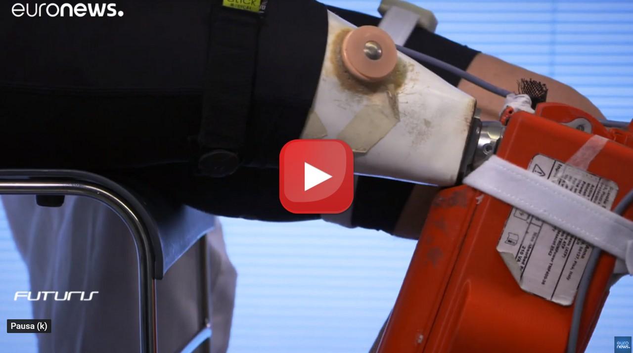 Cyberlegs, la robotica aiuta la riabilitazione il video della tecnologia