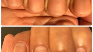 爪がツヤツヤになるスポーツネイルが人気すぎる