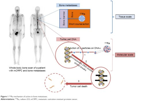 small resolution of figure 1 223ra mechanism of action in bone metastases abbreviations 233ra radium 223 mcrpc metastatic castration resistant prostate cancer