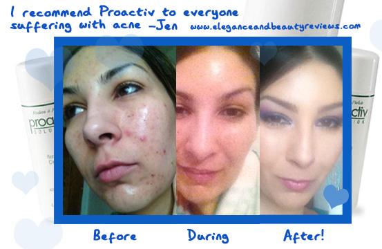 Proactive Skin   Dorothee Padraig South West Skin Health Care