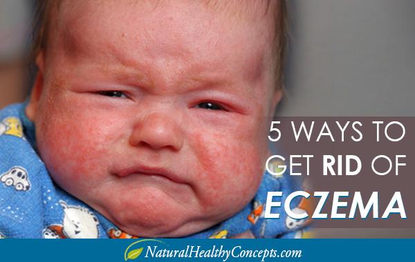Best Cream Eczema Face