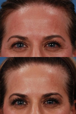 Patient Lisa Reid before and after injectable rejuvenation treatment with Botox or Fillers in Dallas