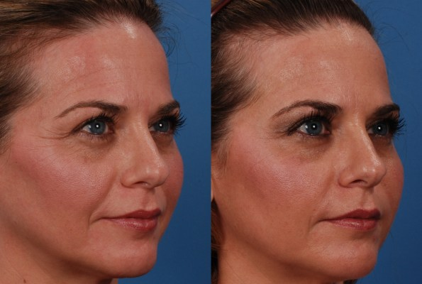 Before and after Lisa Reid received skin care treatment at Dr. Adams office in Dallas