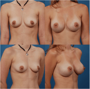 Allergan Silicone Breast Implant Size Result - Patient 2