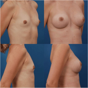Silicone Breast Implant Patient 1