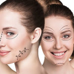 How Much Plastic Surgery is Too Much?
