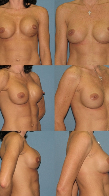 Breast Augmentation Revision- Case G
