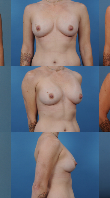 Implant Removal with Fat Transfer- Case 15