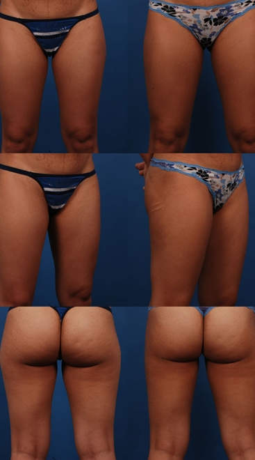 Liposuction Case B