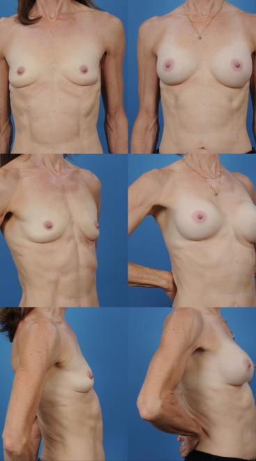 Breast Augmentation- Case 53