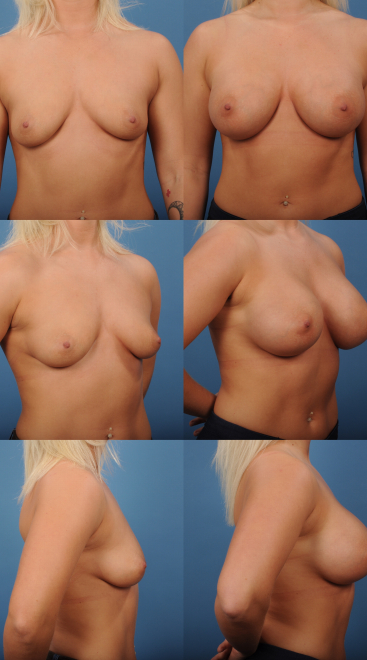 Breast Augmentation- Case 67