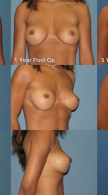 Breast Augmentation – Saline Case B