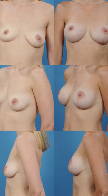 Augmentation with Mastopexy