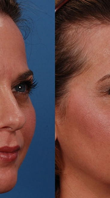 Botox Case C