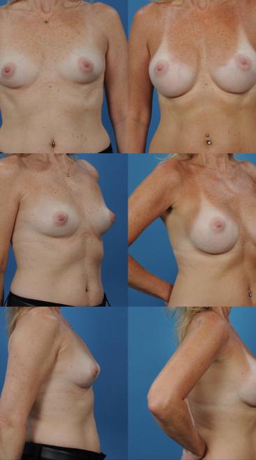 Breast Augmentation- Case 60
