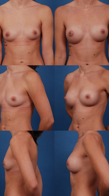 Form Stable Breast Implants Case R