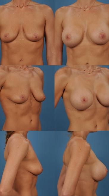 Breast Augmentation- Case 4